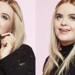 20_year_old_model_down_syndrome